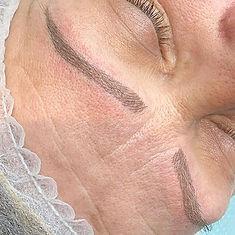 This procedure lasts 12-18 months, my SP