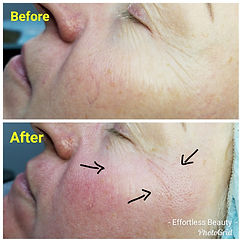 microneedling colorado