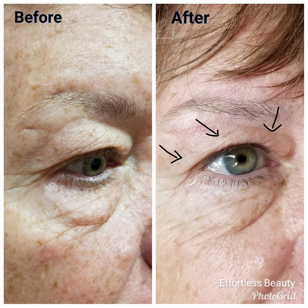 Plasma Eye Lift