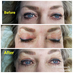 Plasma Eye Lift Littleton