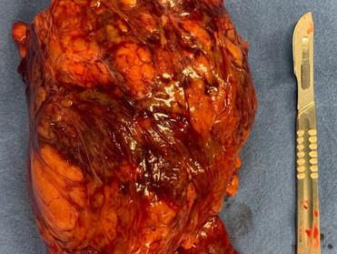 Tumores malignos en los riñones (CANCÉR DE RIÑÓN)