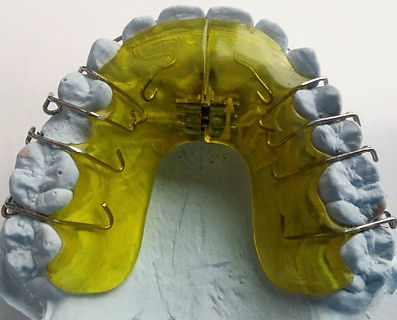 Dental Brace_edited_edited.jpg