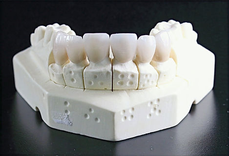 tooth-replacement-759929_1920_edited_edited.jpg