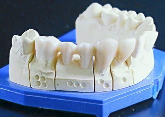 tooth-replacement-759928_1920_edited_edited.jpg