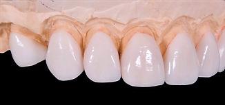 dental-2036945_edited.jpg