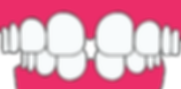 teeth-2864148_edited.png