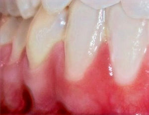 teeth-2339168_1920_edited_edited_edited_edited_edited.jpg