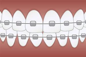 braces-3597591_1920_edited.jpg