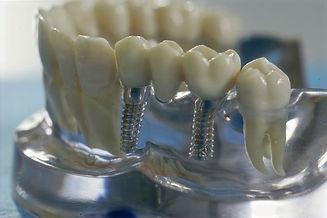 Implantat-34b51e00_edited.jpg