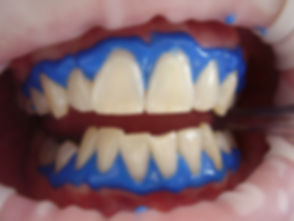 laser-teeth-whitening-716468_1920.jpg
