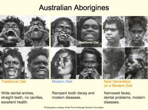 teeth australia.jpg
