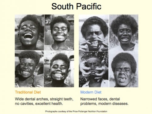 teeth south pacific.jpg