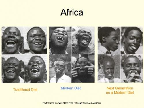 teeth africa.jpg