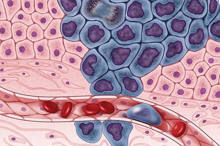 cancer cells.jpg