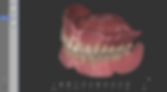 01 Denture Replication.png
