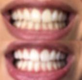 comment avoir les dents blanches, blanchiment dent, comment blanchir les dents, blanchiment des dents prix, blanchiment dentaire kit