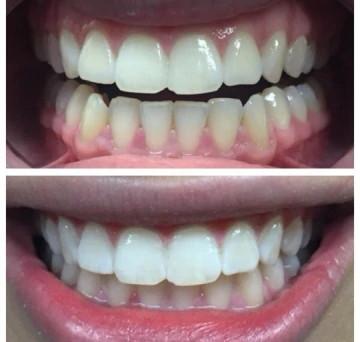 Avant/Après Dents blanches