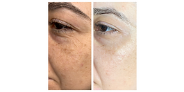 Brown spots sun damage brightend and even skin tone using IPL