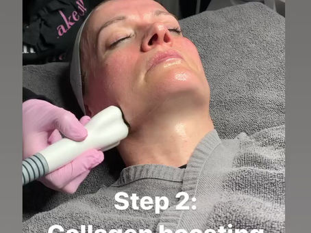 What is a Radio Frequency Facial?