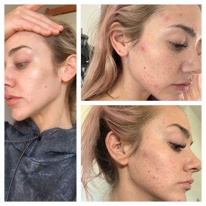 Chemical peel acne.jpg