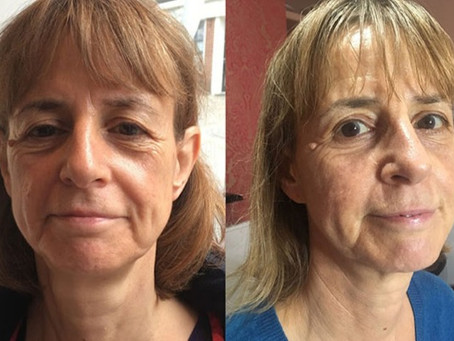 How to treat lines and wrinkles under the eyes