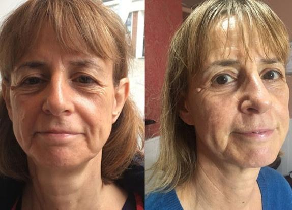 Before and after Venus freeze treatment for eye lids and eye bags