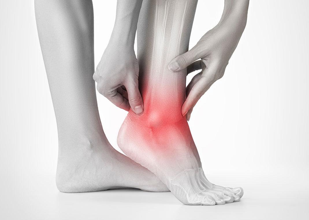 Visita Ortopedica - Piede e Caviglia