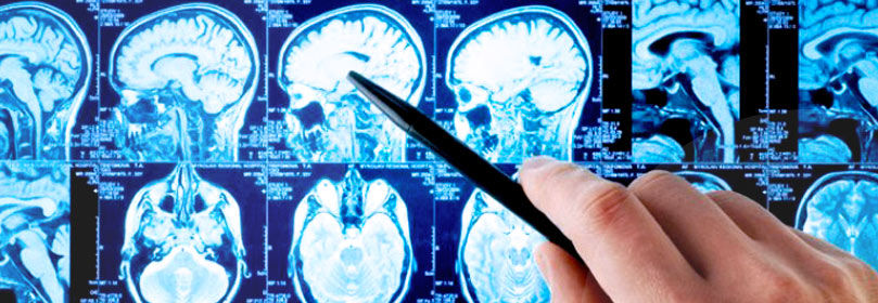 Visita Neurochirurgica