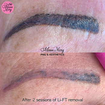eyebrow, microblading removal in Norwich