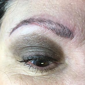 brow removal norwich
