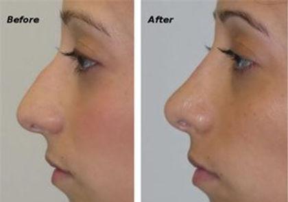 nose filler liquid rhinoplasty in Norwich