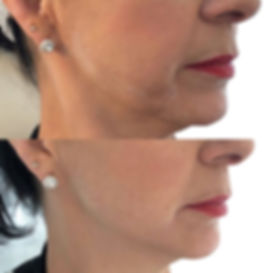 Jawline, cheek and chin filler in Norwich