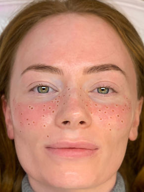 semi permament freckles tattoo in Norwich