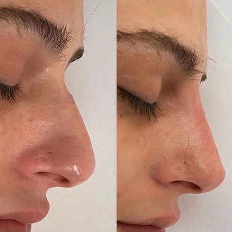 liquid nose filler norwich