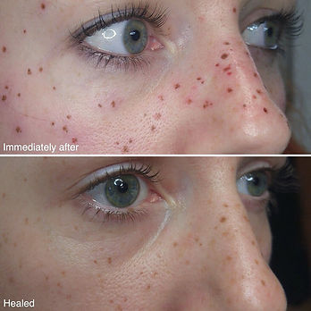 semi permanent freckles norwich