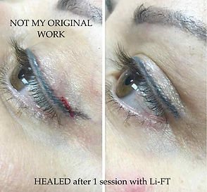how to remove microblading norwich