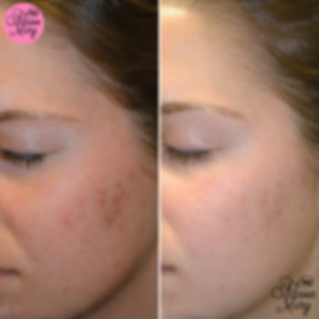AHA chemical skin peel facial norwich