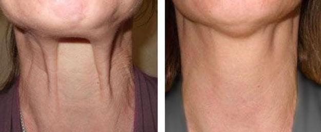 nefertiti neck lift botox norwich