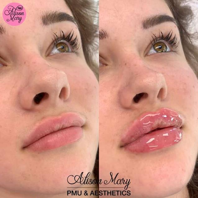 lip filler norwich