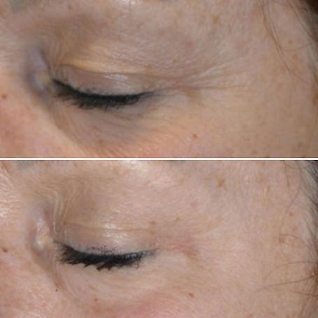 chemical skin peels retinol peel norwich