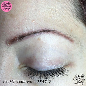 tattoo removal norwich