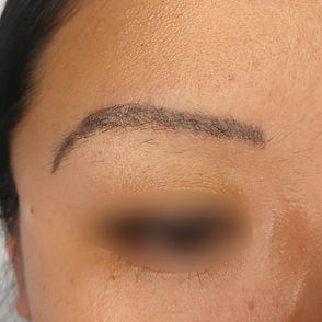 microblading removal norwich