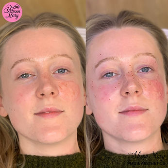 Semi permanent freckles tattoo in norwich