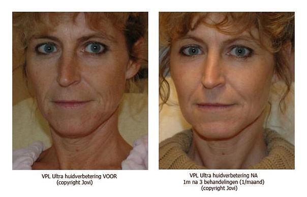9e11049608-VPL-Ultra-huidverbetering-voo