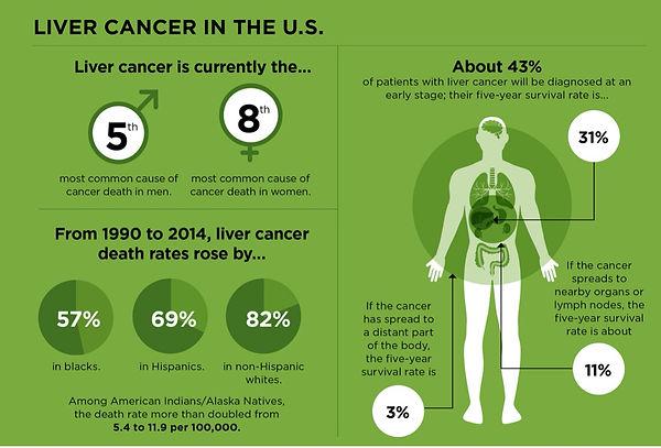 liver cancer.jpg