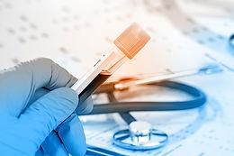 Laboratoriotutkimus: veritestit