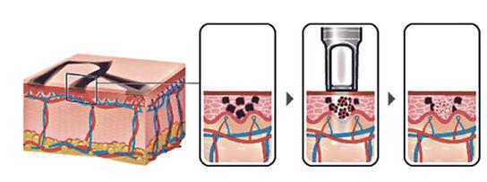 tattoo removal schema.jpg