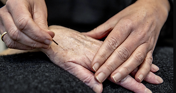 Akupunktur i hånd ved Dorte Ringsing hos