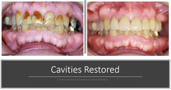 cavities restored
