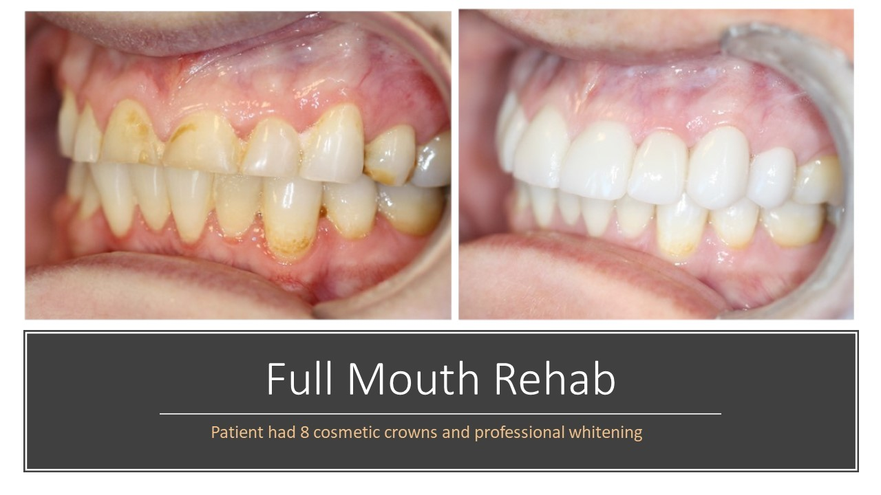 Full Mouth Rehab
